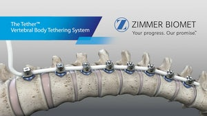 The Tether™ Vertebral Body Tethering System - Surgical Technique Animation