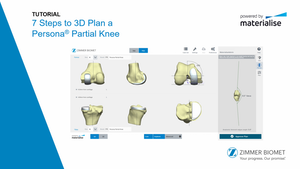 Persona® Partial Knee PSI 3D Planning Tutorial