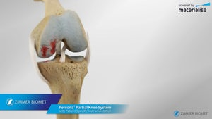 Persona® Partial Knee PSI Animation