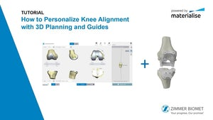 Tutorial: How to Personalize Knee Alignment with 3D Planning and Guides