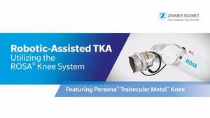 Robotic-Assisted TKA Utilizing the ROSA® Knee System featuring Persona® Trabecular Metal™ Knee
